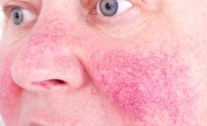 La cura per la rosacea in estate