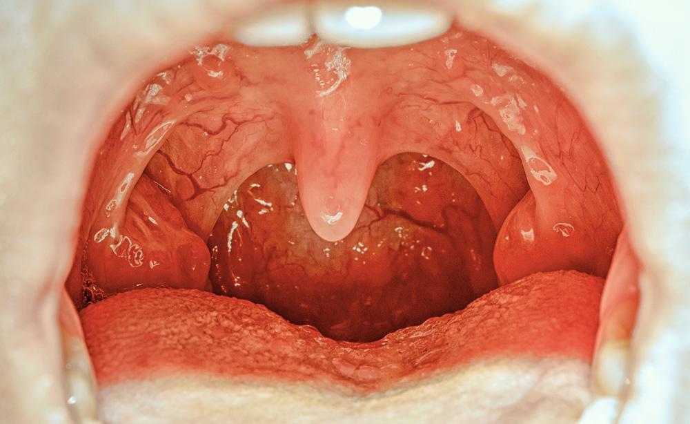 Apnea dei bambini: quando è il caso di controllare le adenoidi o le tonsille