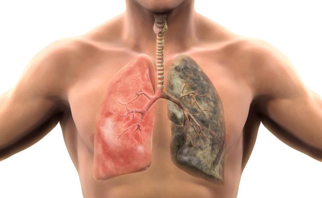 10 malattie causate dal fumo: no, non pensate solo al cancro ai polmoni
