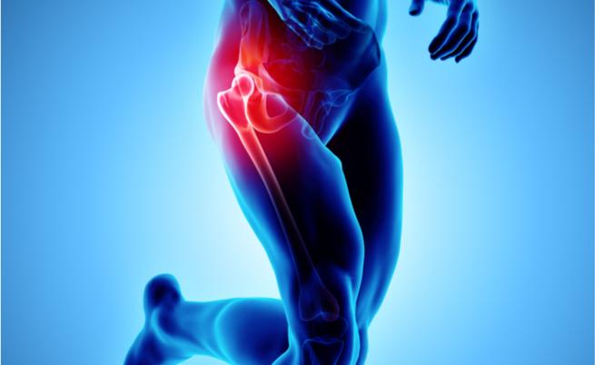 Protesi dell'anca: cosa prevede l'intervento (e quando è necessario)