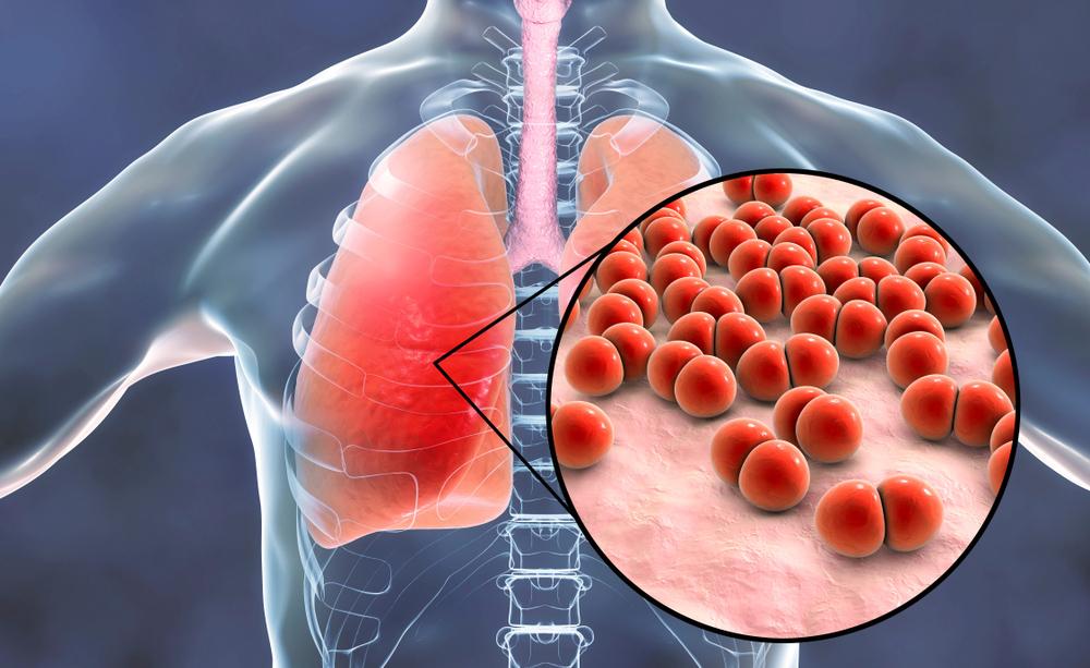 Bronchite o polmonite: ecco come riconoscerle