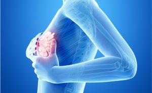 tumore al seno senza chemioterapia: le novità da ASCO 2018