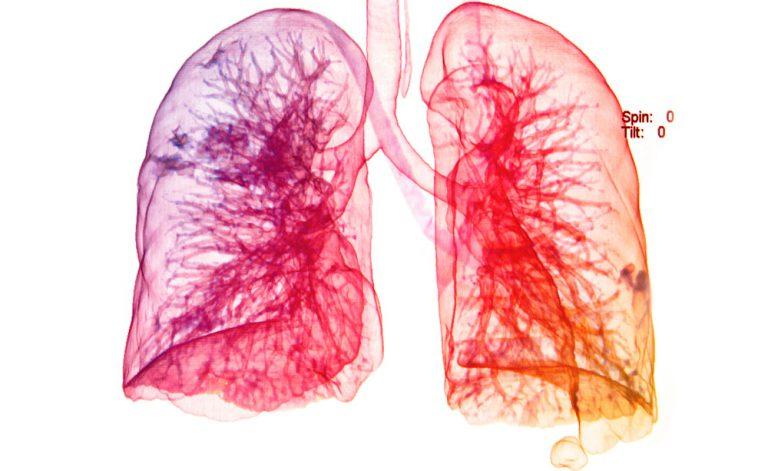 Artrosi, artrite, asma e bronchite possono essere causate dall'inquinamento?