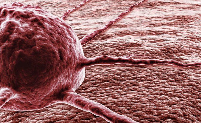 Tumore al colon retto e biopsia liquida: una nuova arma contro la malattia