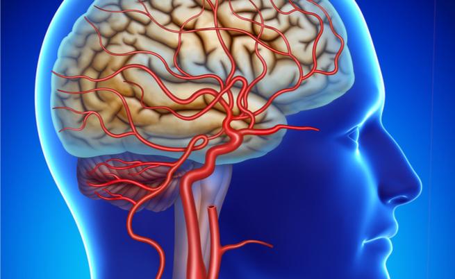 Arterite di Horton: quando le arterie della testa si infiammano