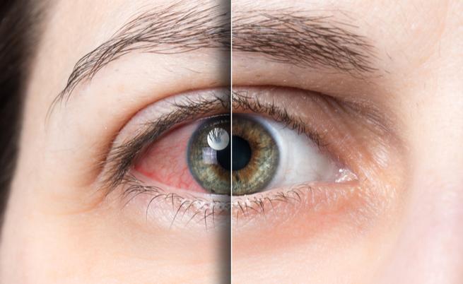 Il frutto che fa bene al fegato e alla vista? È piccolo e arancione