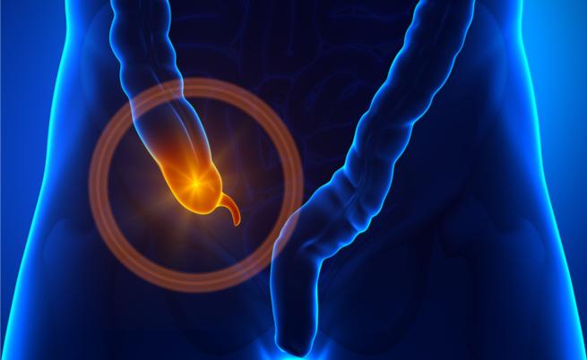La relazione tra appendicite e peritonite