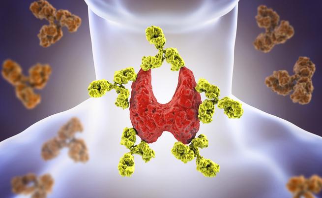 Tutti gli esami da fare se si sospettano malattie tiroidee