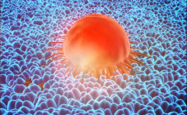 iAMGENIUS: alla ricerca di soluzioni per chi convive con un tumore