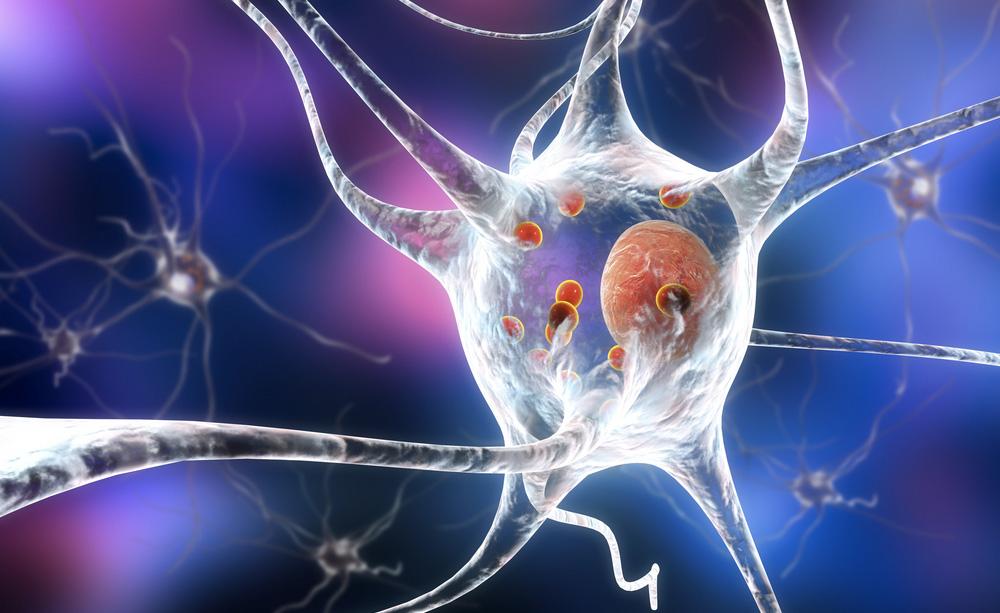 La difficoltà di parola è un segnale per riconoscere l'arrivo del Parkinson: vero o falso?