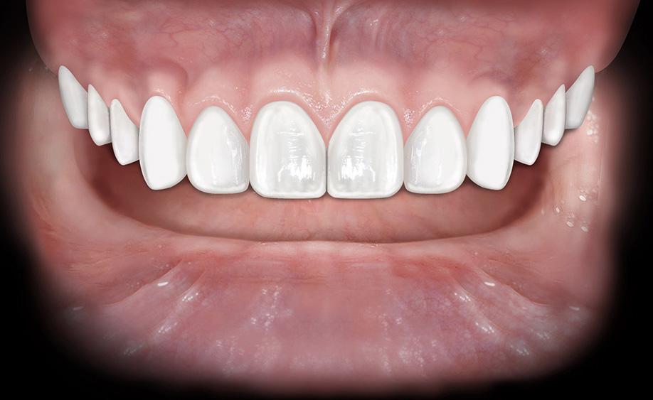 """Denti disallineati? Una soluzione """"invisibile"""" può prevenire anche carie e piorrea!"""