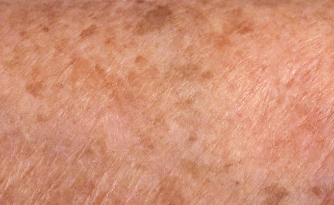 10 rimedi della nonna per dire addio alle macchie scure sulla pelle