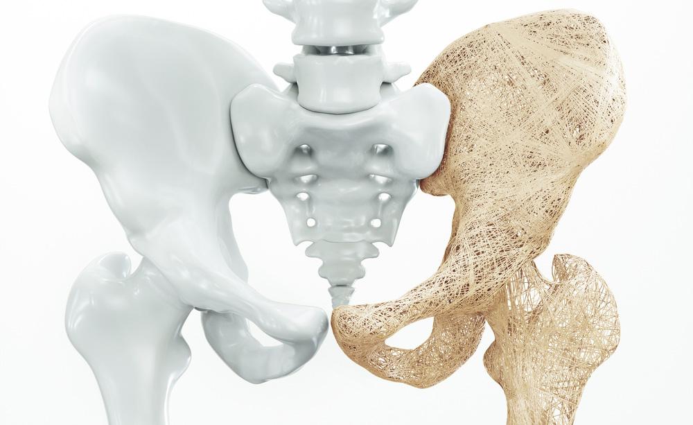 Celiachia non diagnosticata? Può causare osteopenia e osteoporosi