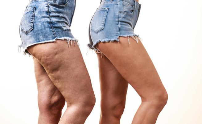10 trucchi per nascondere la cellulite (provare per credere)