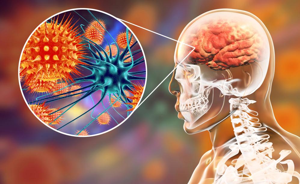 Vaccini, autismo ed epilessia: chi ha ragione (e chi no)