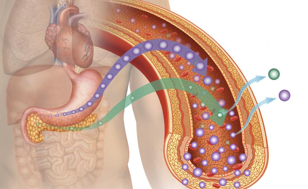 Curare le apnee notturne potrebbe aiutare a prevenire il diabete
