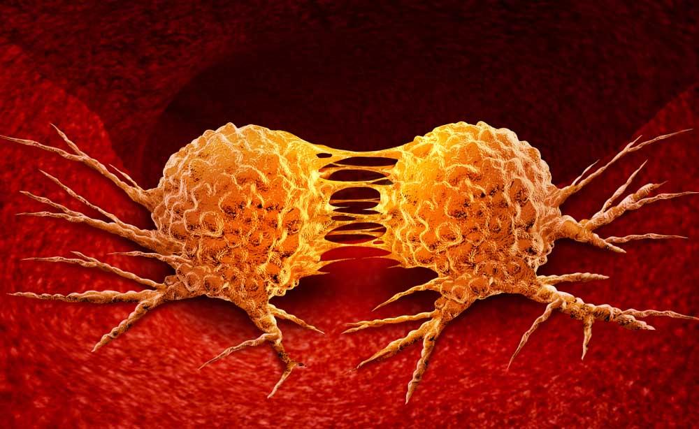 Metastasi: una nuova scoperta potrebbe combattere la loro formazione
