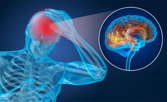 Emicrania, cefalea e invalidità: i diritti e le agevolazioni
