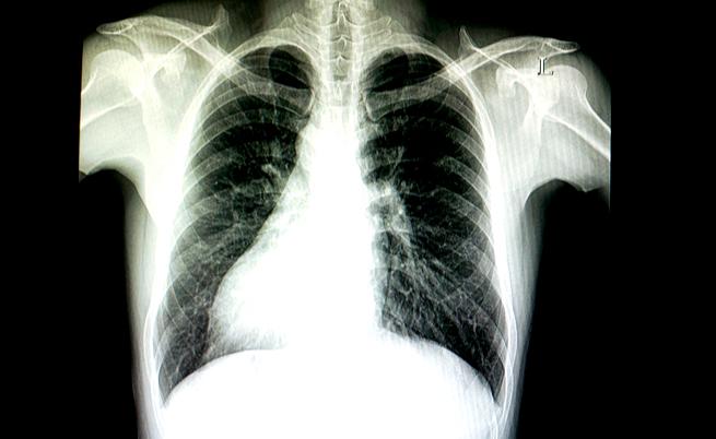 C'è chi nasce con gli organi invertiti. Lo sapevate?