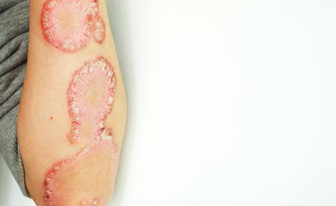 Psoriasi: arriva il farmaco che elimina lesioni e prurito