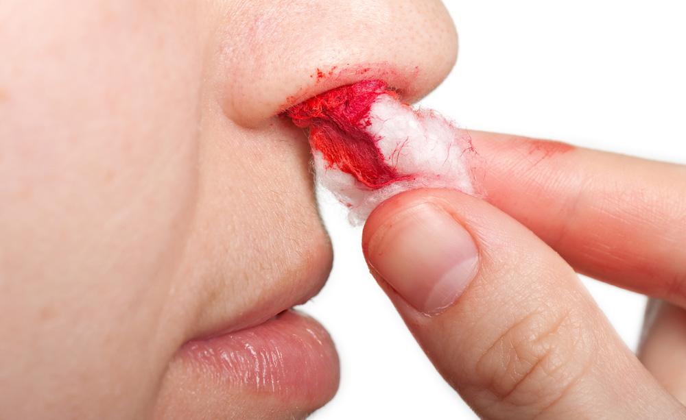 Sangue dal naso, dall'orecchio o dalla bocca? Ecco cosa fare in caso di emorragie