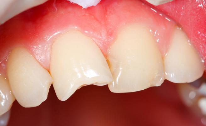Come curare un ascesso dentale (anche) con rimedi naturali