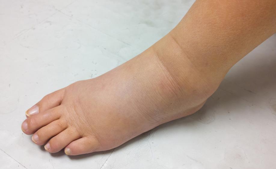 Gambe e piedi gonfi e pesanti: quando sono sintomi di linfedema?