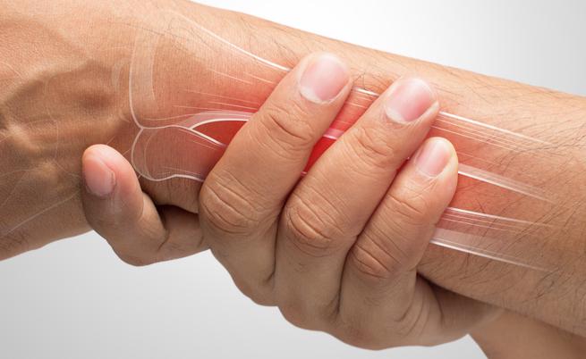 Carenza di vitamina D: potrebbe essere collegata all'artrite reumatoide?