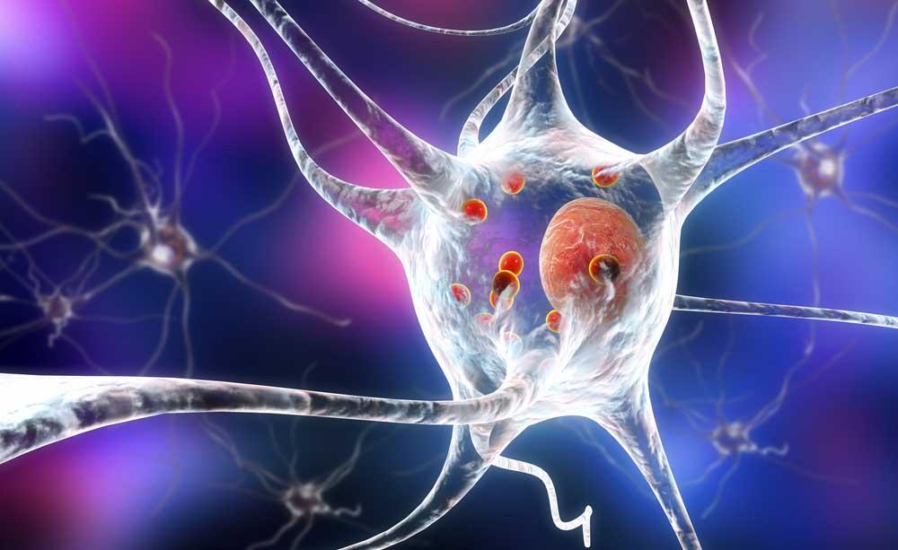 20 anni di Parkinson Italia: le nuove cure, i programmi di assistenza e la qualità della vita dei pazienti