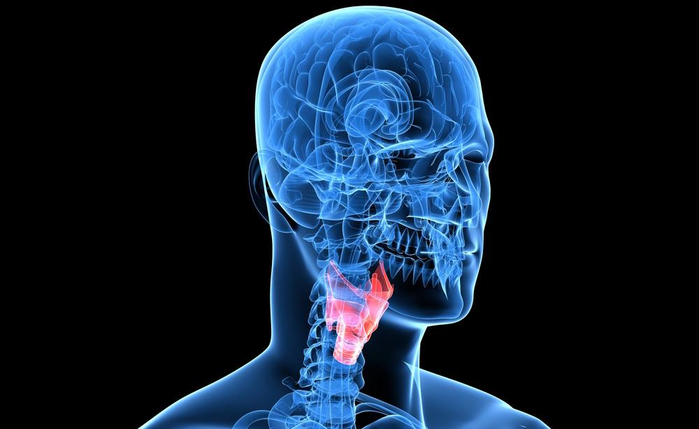 Polipi alla gola: cosa fare quando le corde vocali sono compromesse