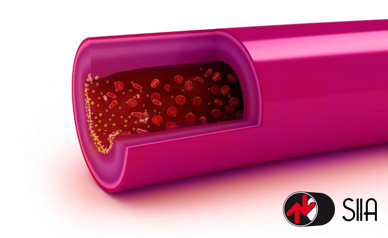 Statine per il colesterolo: pro e contro