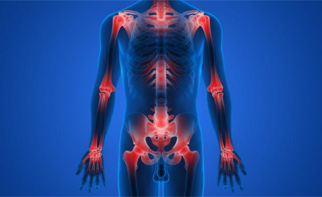 Dall'artrite alla psoriasi: arriva l'ok per un nuovo farmaco