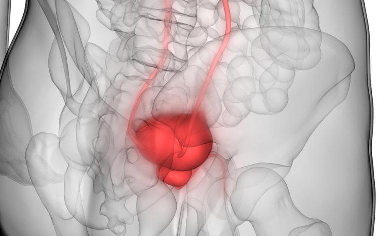 nuove speranza tumore prostata milano en