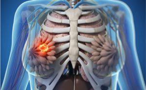 agoaspirato del seno: come si effettua e come si leggono i risultati