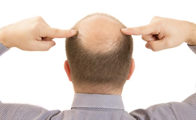Perché gli uomini perdono più capelli rispetto alle donne?