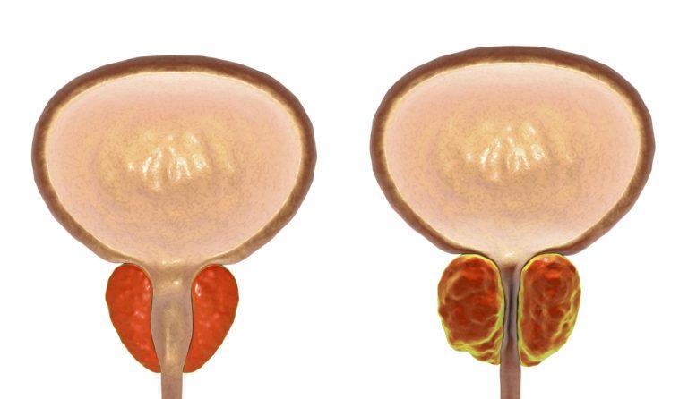 flogosi prostata cronica en