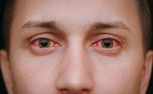 i rimedi della nonna per gli occhi secchi