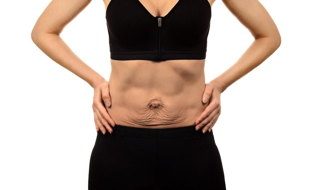 Diastasi addominale post-parto: quando la pancia prominente causa dolore, incontinenza e…