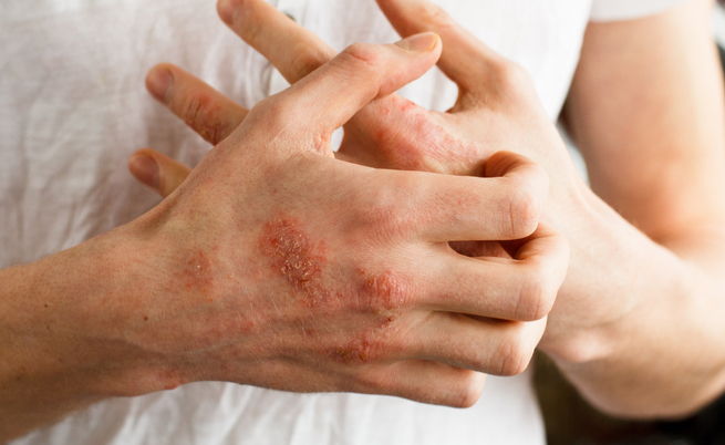 Bollicine sulle mani? Forse è dermatite (ma ci sono altre cause)