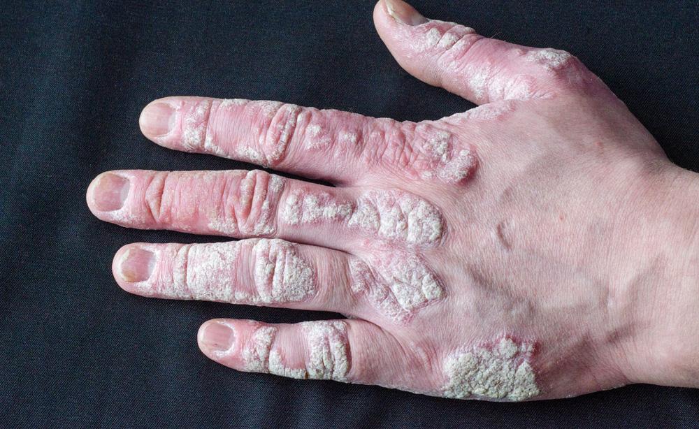 Artrite psoriasica: scoperto un nuovo trattamento che potrebbe essere più efficace