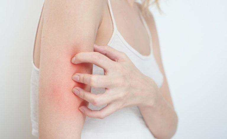 Eczema e prurito? Finalmente scoperta una nuova terapia per un sollievo immediato (e prolungato)!
