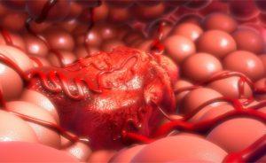 esami del sangue tumore