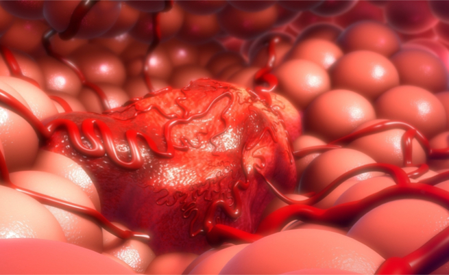 Esami del sangue: quali valori sono spia di un tumore?