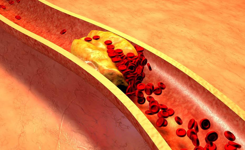 Siamo certi che il colesterolo buono non faccia male?