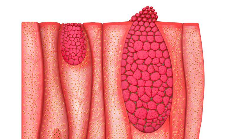 Epitelioma, un tumore della pelle molto diffuso (di cui si parla poco)