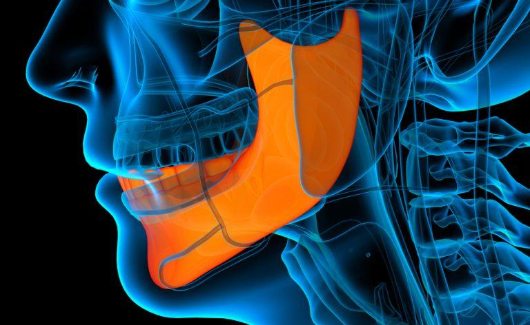 Parodontite: un campanello di allarme per l'artrite reumatoide