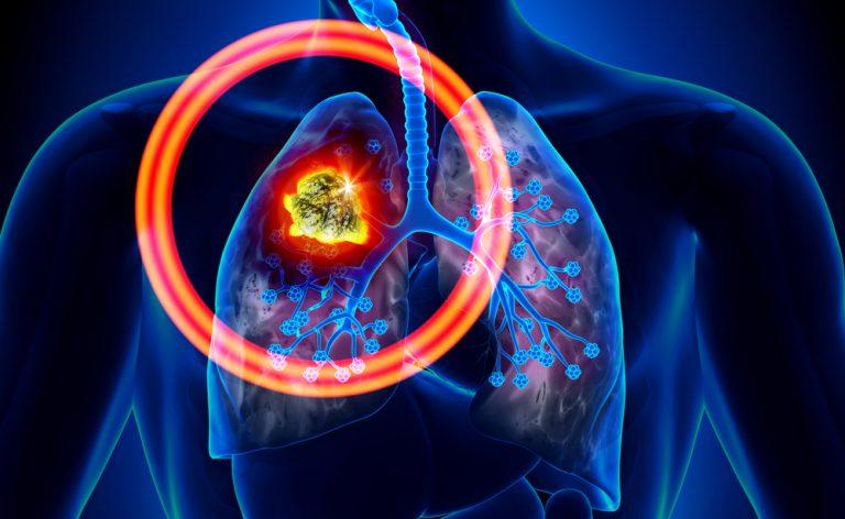 I tumori più diffusi (a cui dovremmo fare più attenzione)