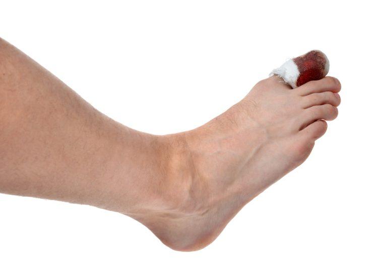 Dito del piede rotto: cosa fare per ridurre il dolore?