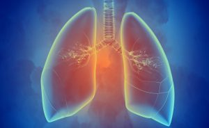 Aspergillo polmoni
