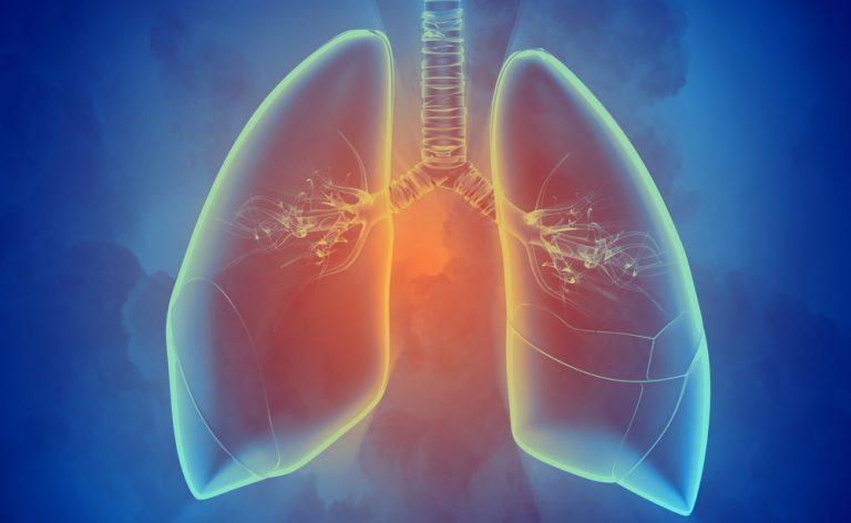 Quando i polmoni vengono attaccati dall'Aspergillo